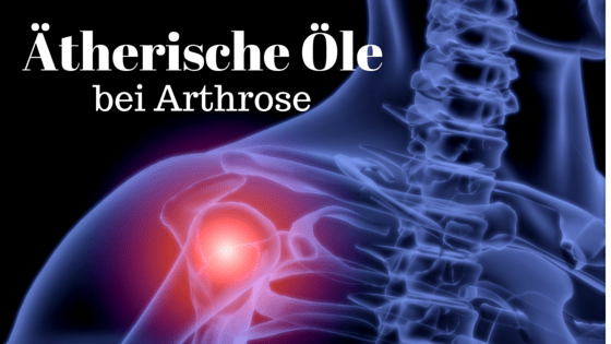 Ätherische Öle bei Arthrose
